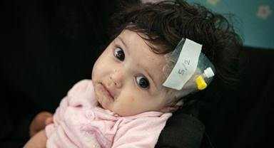 In Yemen Covid-19 threatens the lives of malnourished children like Diala'a. She is six-month-old girl and she is suffering from malnutrition and skin diseases. Photograph: Unicef/Yemen/2020/Alghabri