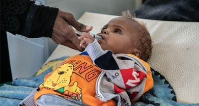Mazen being treated for malnutrition at Unicef supported hospital in Sana'a, Yemen. Photograph: Unicef/Yemen/2020/Alghabri
